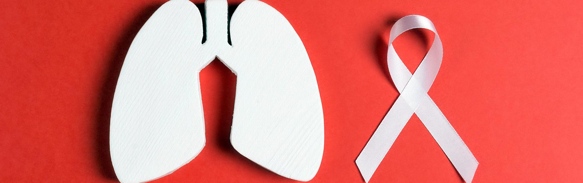 Dépistage et investigation du cancer pulmonaire - 21 juin 12h00 à 13h00